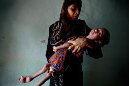 """Internationaler Wettbewerb """"Unicef-Foto des Jahres"""", Indien: Die Katastrophe von gestern ist das Drama von heute, Alex Masi, 2012, ehrenvolle Erwähnung, © 2012 Alex Masi. All Rights Reserved"""